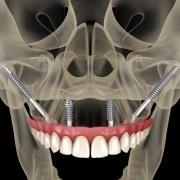 denti fissi con poco osso