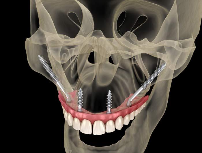 intervento di implantologia zigomatica
