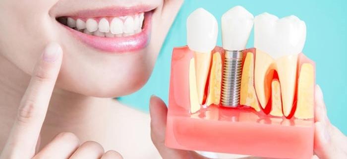 perdita ossea dentale