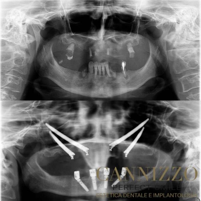 implantologia zigomatica in un giorno