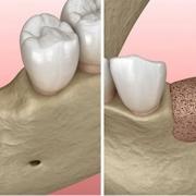 Riassorbimento osseo alveolare