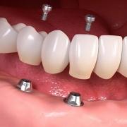 Rimuovere un impianto dentale