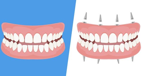 Dentiera o impianto fisso?