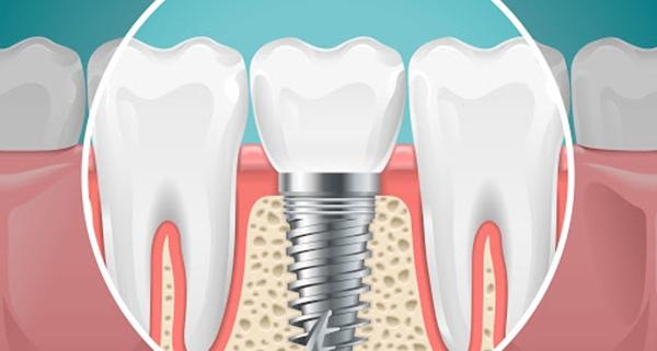 Impianto dentale quando manca l'osso