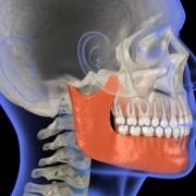 Frattura della mandibola