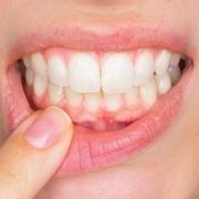 Impianti dentali in titanio e allergia al nichel