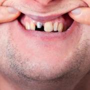 Perché alcuni impianti dentali falliscono