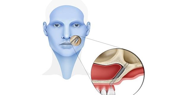Vantaggi degli impianti zigomatici in pazienti con perdita ossea dentale